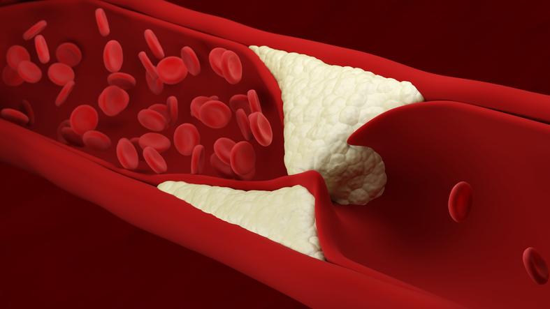 Reducir tus niveles de colesterol, la práctica que puede regalarte años de vida