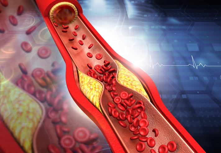 Controlar los niveles de colesterol en los mayores, clave para reducir eventos cardiovasculares